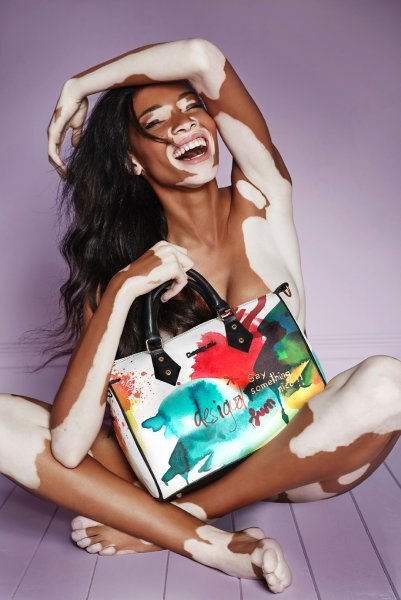 Chantelle Brown-Young/ Winnie Harlow